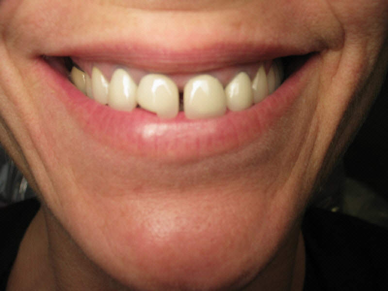 Porcelain Veneers CostVeneers Cost Per Tooth