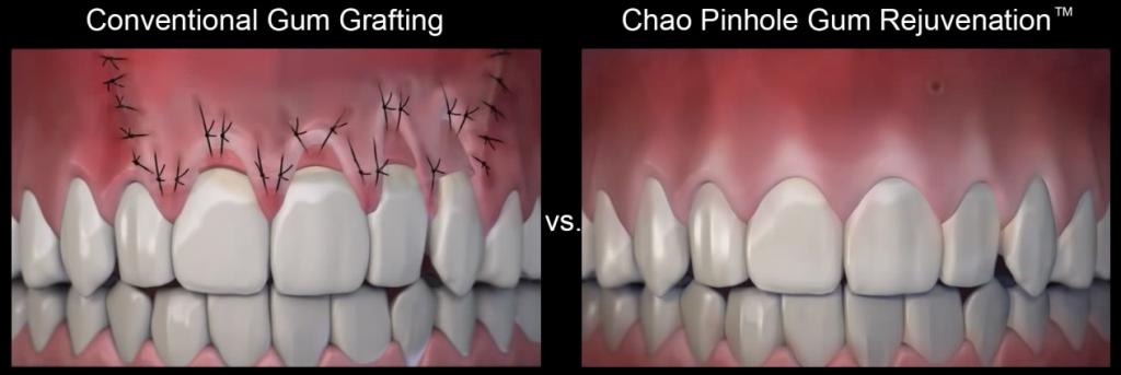 Pinhole-vs-Traditional